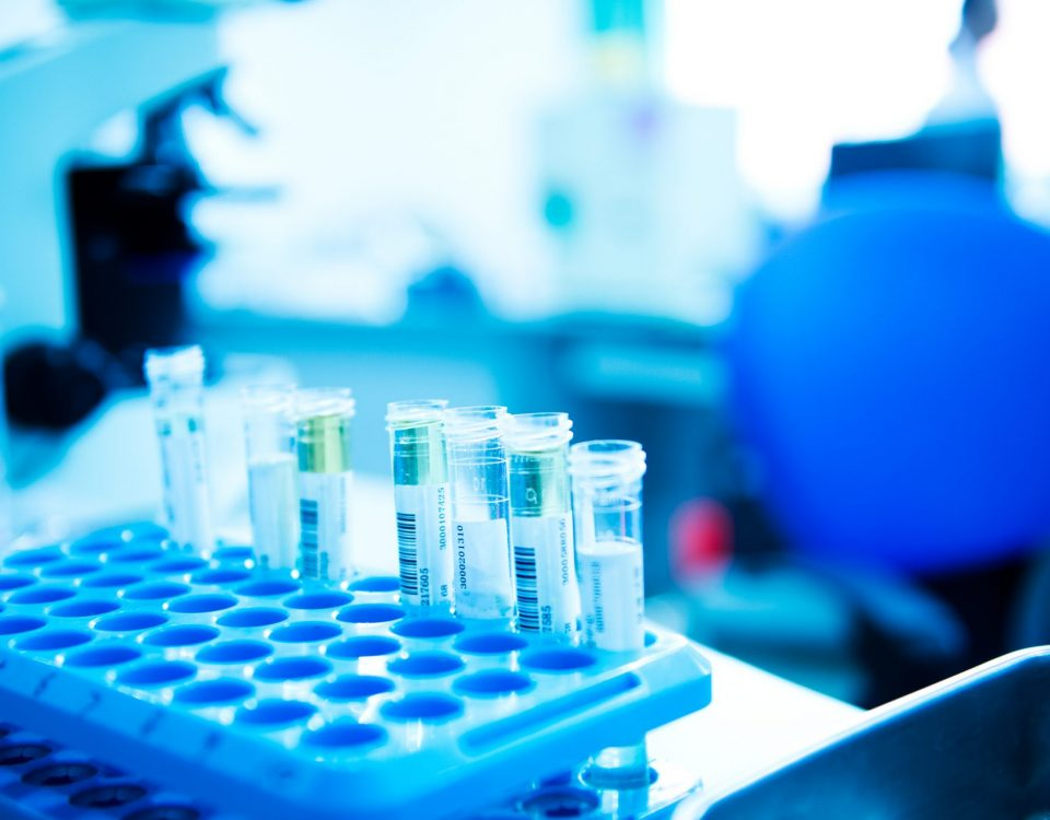 Laboratory test tubes | Drug and alcohol test